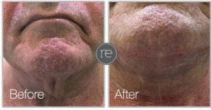 Thread Lift to improve neck contour by Dr. Kinsella