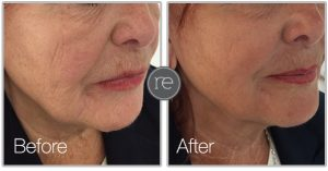 Silhouette thread lift to jawline by Dr. Kinsella