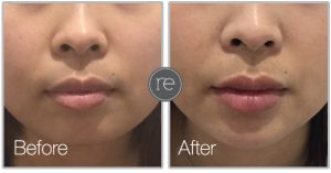 Dermal filler used in chin to improve facial contour by Dr. Kinsella