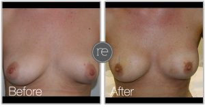 AquaShape fat transfer to achieve fuller looking breasts by Dr. Kinsella