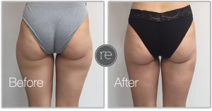 liposuction hips by Dr. Kinsella