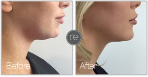AquaShape to remove excess fat cells from neck area by Dr. Kinsella
