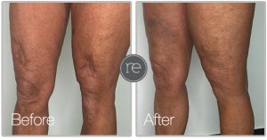 Aqua shape fat transfer to knees by Dr. Kinsella