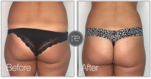 Aqua shape liposuction to outer hips by Dr. Kinsella
