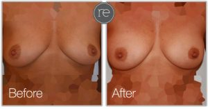 Aqua shape fat transfer to achieve fuller looking breasts by Dr. Kinsella