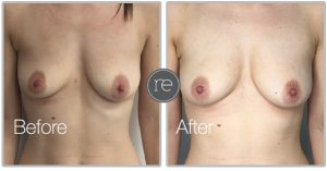 Fat transfer to breasts by Dr. Kinsella