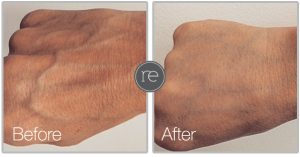 AquaShape fat transfer to achieve youthful looking hands by Dr. Kinsella