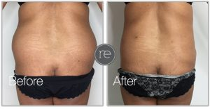 Liposuction on back by Dr. Kinsella