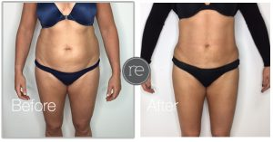 liposuction on waist by Dr. Kinsella