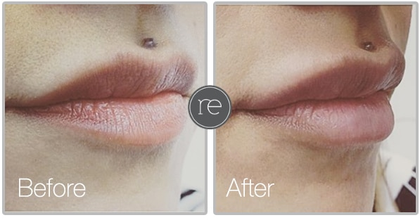 Lip Fillers in Alderley Edge