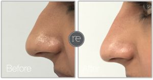 Non Surgical Nose Job in Cheshire