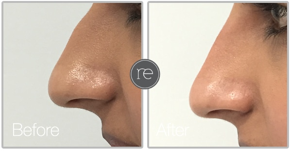Liquid Nose Job in Alderley Edge