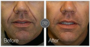 Dermal Fillers in Bowdon