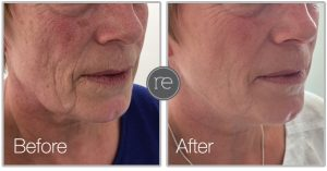 Thread Lift to improve jaw contour by Dr. Kinsella