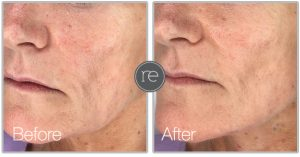 Thread Lift to contour jaw line by Dr. Kinsella