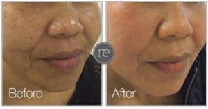 Smartxide laser used to resurface skin and remove imperfections by Dr. Kinsella