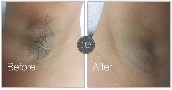 Laser Hair Removal in Manchester