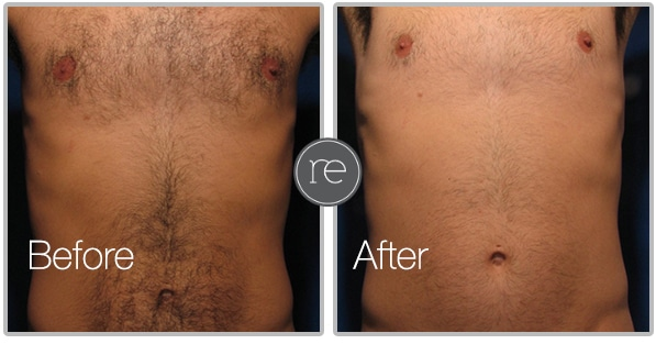 laser hair removal in Wilmslow