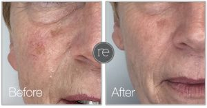 Skin rejuvenation Thread vein removal
