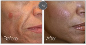 smartxside laser used to resurface skin and remove birthmark by Dr. Kinsella