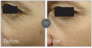 Sublime skin tightening used to smooth out fine lines around eye are