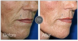 Sublime skin tightening to smooth fine lines