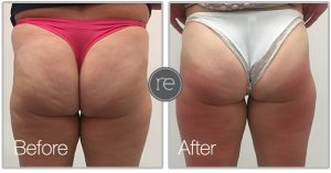 Vela Shape to remove cellulite