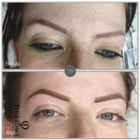 Semi permanent brow correction