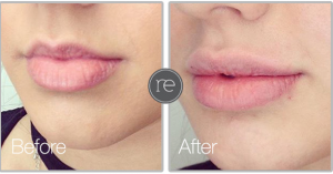 Lip Fillers in Cheshire