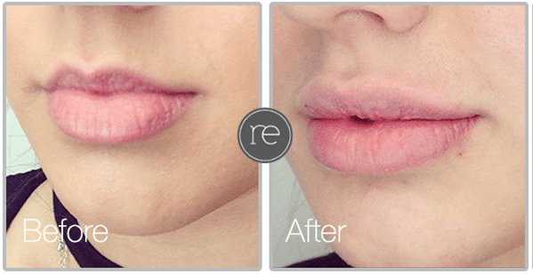 Lip Fillers in Lymm