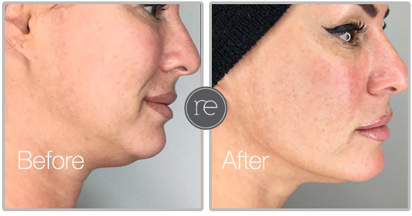 Threadlift Manchester | Cosmetic Surgery | Cheshire | Re- Enhance