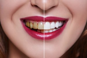 crowns-better-teeth-new-dentist