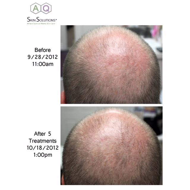 Hair Loss Treatment in Lymm