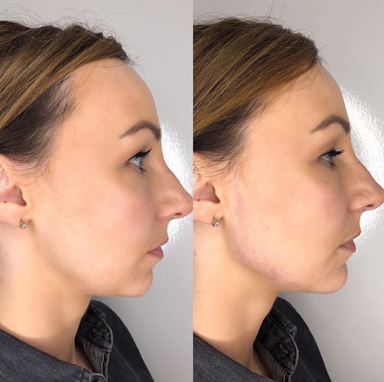 Liquid Nose Job in Cheshire