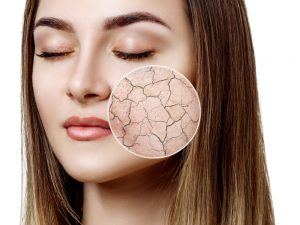 dry-skin-cracked-lines-wrinkles-observ