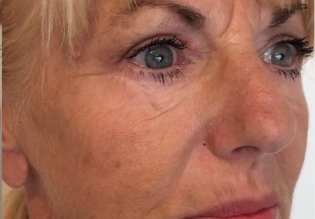 Anti Wrinkle Injections in Bowdon