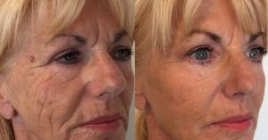 dermal_fillers_and_thread_lift