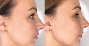 jaw_line_contouring_with_dermal_filler
