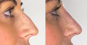 non_surgical_rhinoplasty_dermal_filler