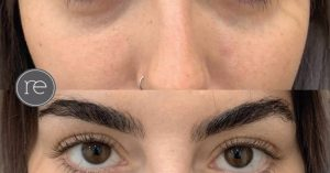 under_eye_dermal_filler