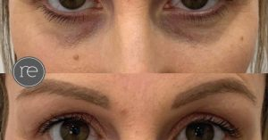under_eye_dermal_fillers