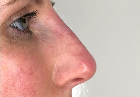 Non-Surgical Rhinoplasty in Alderley Edge
