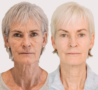 Non-Surgical Facelift in Knutsford